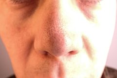 Un uomo con i grandi pori e comedoni sul suo naso fotografia stock