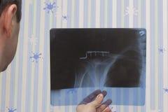 Un uomo con un trauma alla clavicola giusta di varie immagini dei raggi x Nell'immagine può essere visto che era wi fissi di una  Fotografie Stock Libere da Diritti