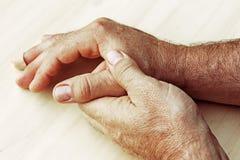 Un uomo ha dolore in sua mano Immagine Stock Libera da Diritti
