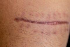 Una cicatriz del tejido fibroso que substituye la piel normal después de lesión en piel imagen de archivo libre de regalías
