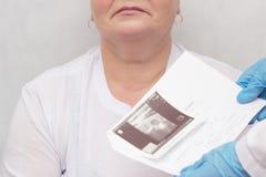 Una donna è consultata da un endocrinologo, ormoni tiroidei che il medico tiene un sistema endocrino del fondo bianco di ricerca  immagini stock libere da diritti