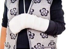 Una donna con un braccio rotto fotografia stock libera da diritti