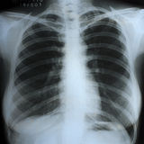 Una exploración de la radiografía del pecho Fotos de archivo