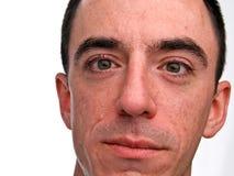 Colpo in testa maschio caucasico Immagine Stock