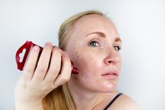 Una giovane donna mette una maschera del gel sul suo fronte Cura per oleoso, pelle di problema immagine stock