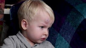 Una grande contusione sulla fronte di un ragazzino stock footage