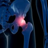 Una junta de cadera dolorosa stock de ilustración