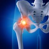 Una junta de cadera dolorosa ilustración del vector