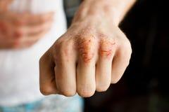 Una mano caucasica dell'uomo con la psoriasi su un fondo bianco Pelle problematica dell'eczema Foto della medicina e di dermatolo Fotografie Stock