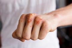 Una mano caucasica dell'uomo con la psoriasi su un fondo bianco Pelle problematica dell'eczema Foto della medicina e di dermatolo Fotografia Stock Libera da Diritti