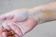 Una mano masculina con un rastro de punto después de pasar a través de una instalación del stent en el corazón después de un ataq foto de archivo