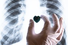 Una mano in un guanto medico bianco pone un cuore di pietra su un esame radiografico del torace Concetto di cardiochirurgia, dei  fotografia stock libera da diritti