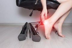 Una muchacha se sienta en una silla de la oficina y mancha un ungüento del pie con el ungüento médico contra una infección por ho fotografía de archivo