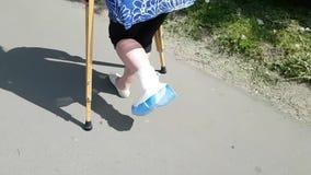 Una mujer con una pierna quebrada en los saltos médicos blancos de un yeso en las muletas Una situación difícil de la vida para u almacen de video
