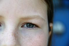 Una parte de la cara del ` s de la muchacha con la mejilla pecosa y el ojo azul Imágenes de archivo libres de regalías