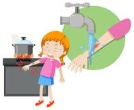 Una quemadura de los primeros auxilios de la muchacha ilustración del vector