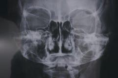 Una radiografía adquirida una cabeza humana que muestra a las partes de los detalles del cráneo humano del cráneo imagen de archivo