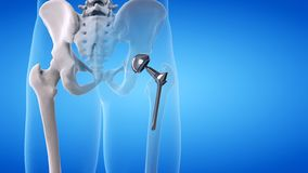 Una sostituzione dell'anca illustrazione di stock