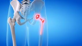 una sostituzione dolorosa dell'anca illustrazione vettoriale