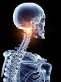 Una spina dorsale cervicale dolorosa royalty illustrazione gratis