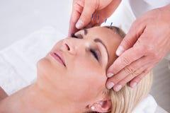 Una terapia de la acupuntura en un centro del balneario Imagen de archivo libre de regalías