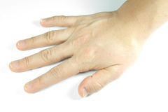 Unattractive hand on white background Stock Photo