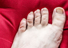 Uncared foot Stock Photo