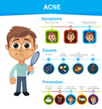Uncontrolled Movements Symptom. Acne Symptoms, Causes and Prevention. Boy with symptoms. Whiteheads, blackheads, small red, tender bumps Royalty Free Stock Images