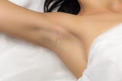 Underarm flickaklient efter laser-hårborttagning royaltyfri fotografi