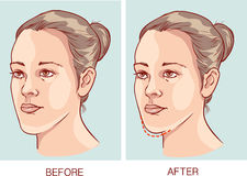 Underbite Jaw surgery. Vector illustration of a Underbite Jaw surgery Royalty Free Stock Image