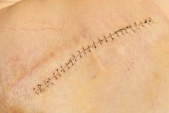 Une blessure sur la peau Image stock