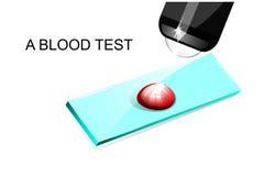 Une goutte de sang sur une glissière sous un microscope images stock