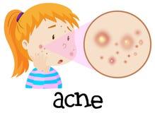 Une jeune femme ayant l'acné illustration libre de droits