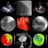 Une série de représentation cardiaque avec différentes techniques Photographie stock libre de droits