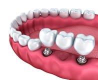 Une vue en gros plan des dents inférieures et des implants dentaires Image stock