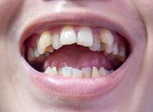 Malocclusion, Overcrowding of both upper and lower teeth. Uneven and yellow stained teeth of both jaws in Asian, Myanmar Man royalty free stock photos
