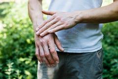 Ungüento a mano Aplicación del ungüento en el tratamiento y la hidración de la piel Piel del psoriasis Foto horizontal imagen de archivo libre de regalías