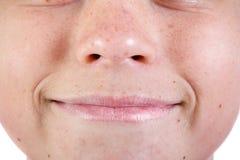 Ung caucasian framsida för ` s för tonårs- pojke arkivbild