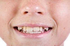 Ung caucasian framsida för ` s för tonårs- pojke fotografering för bildbyråer