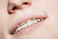 Ung flicka som ler med braces på tänder Fotografering för Bildbyråer