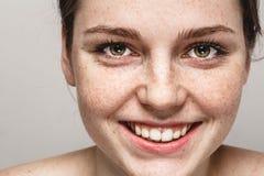 Ung härlig stående för fräknekvinnaframsida med sund hud arkivbilder