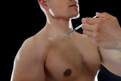 Ung kroppbyggnadsidrottsman som använder steroider för ökande sport och idrotts- kapaciteten som injicerar injektionssprutaskuldr arkivfoto