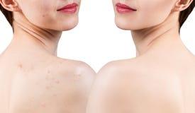 Ung kvinna med akne på behandling för skuldror före och efter fotografering för bildbyråer