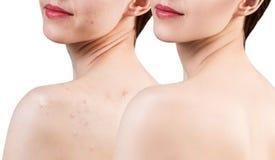 Ung kvinna med akne på behandling för skuldror före och efter royaltyfria bilder