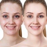 Ung kvinna med behandling för akne före och efter fotografering för bildbyråer
