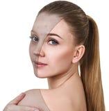 Ung kvinna med behandling för akne före och efter royaltyfria bilder