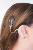 Ung kvinna med den cochlear implantatet Arkivfoto