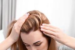 Ung kvinna med problem för hårförlust på suddig bakgrund royaltyfria foton