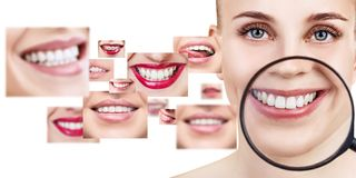 Ung kvinna nära collage med vård- tänder royaltyfri fotografi