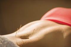 Ung kvinna som får akupunkturbehandling royaltyfri fotografi